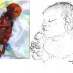16 gestation weeks