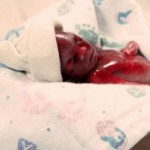 18 gestation weeks